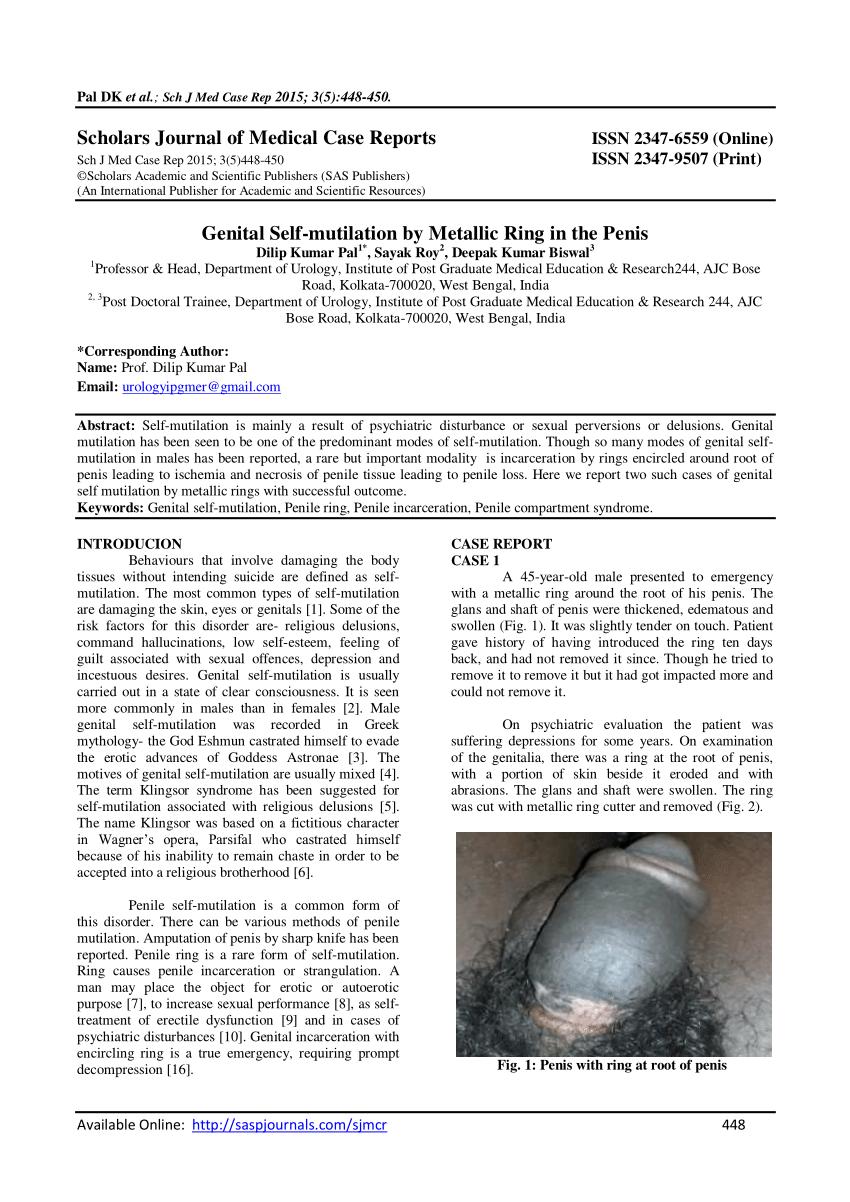 Oţel inoxidabil Penis Penis Metal Inel 30mm ejacularea precoce erectie impotenta întârziere ajutor
