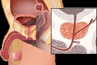 modul în care prostata afectează erecția
