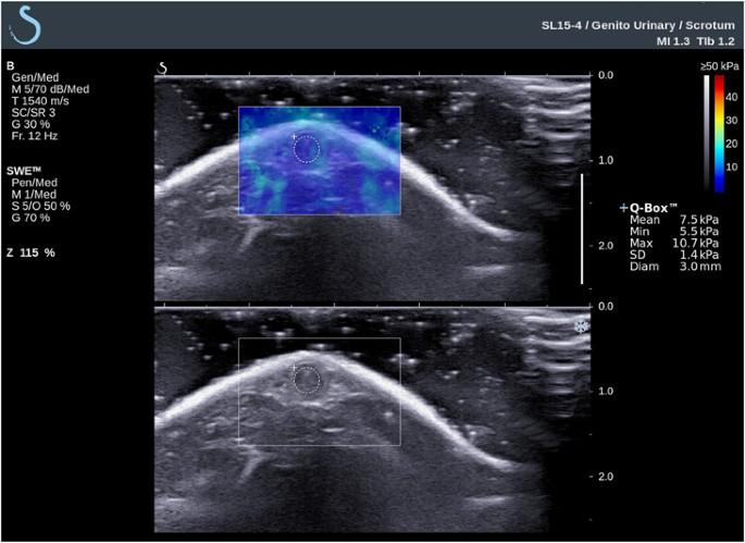 tratamentul erecției pe bază de plante tratament de reducere a erecției