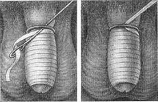 Care pot fi consecințele venelor varicoase asupra testiculelor la bărbați: tratament, simptome