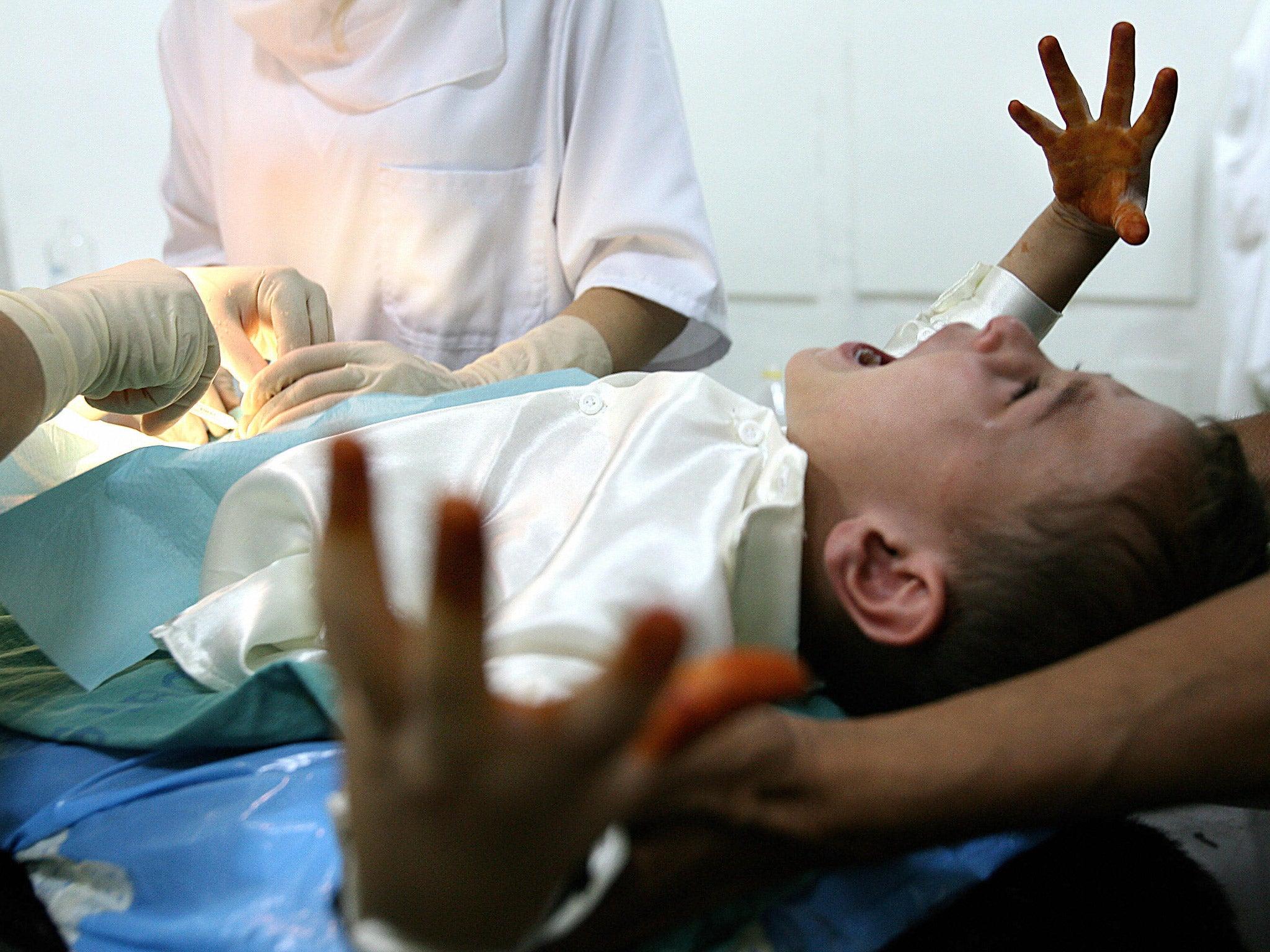 Circumcizie - Wikipedia