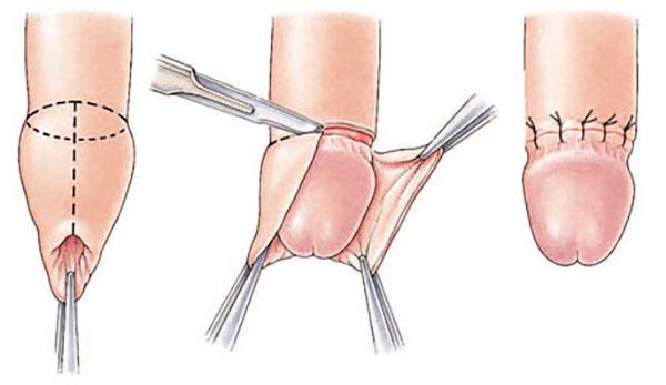 penisul cade după erecție penisul cu o erecție lungă nu merită