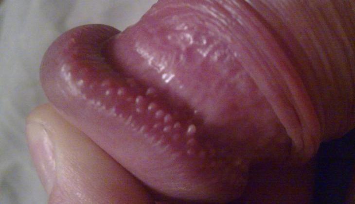 numele formei penisului cum se tratează fără erecție