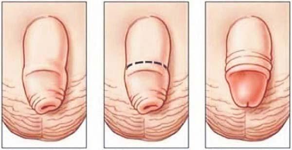Pana la ce varsta creste penisul? Afla opinia specialistilor!
