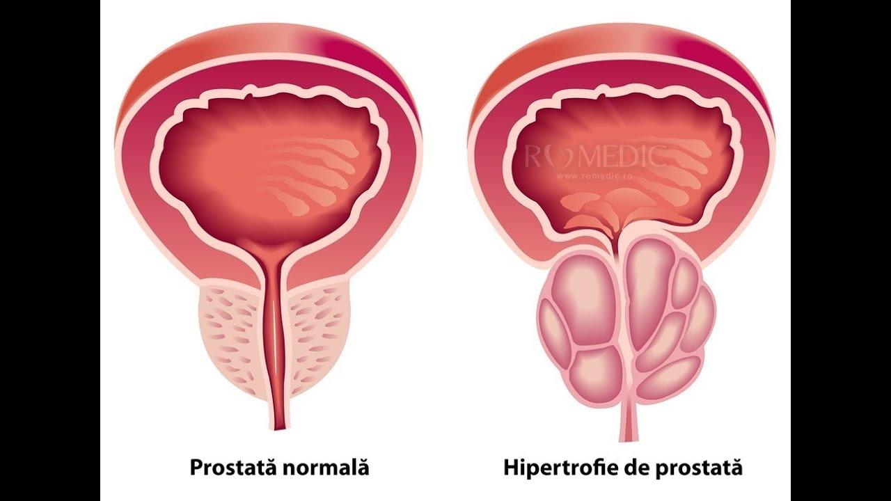 Cele mai frecvente mituri despre adenomul de prostată - medpark