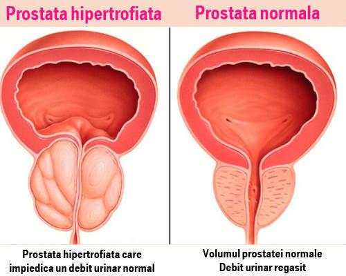 erecție cu boală de prostată