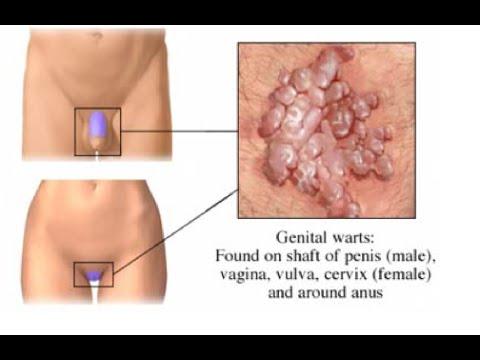 leucoplazie în penis