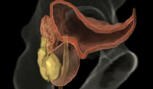 prostatită cronică și disfuncție erectilă cum crește un penis mare