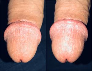 coroana pe penis erecție după operația de prostată