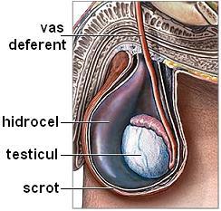 Tumefacţie a scrotului