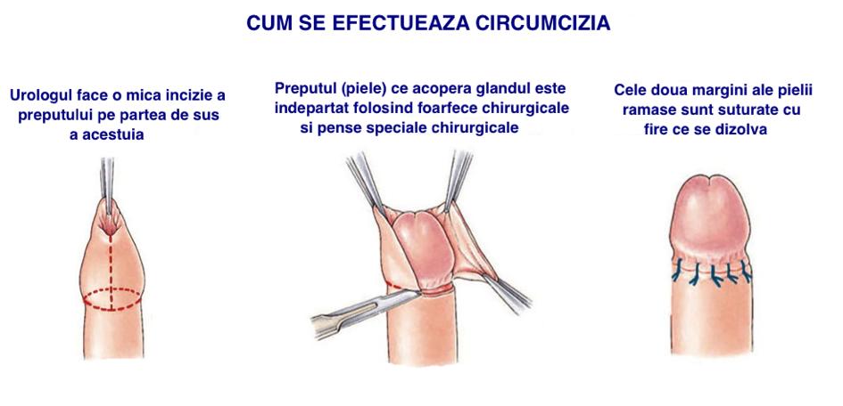 ICD N Afectiune a penisului, nespecificata — Lista Medicamentelor Mediately