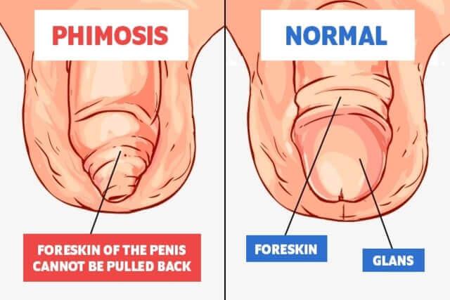 diferența dintre penis și pula