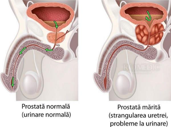 Capsule Predstavit pentru prostată - cost, opinii, prospect, forum, farmacii - STT Enviro Corp