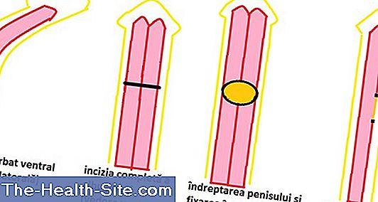 creșterea lungimii penisului