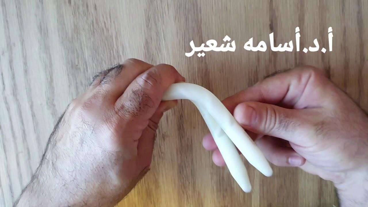 erecție slabă după operație