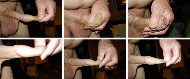 Inflamaţie sau leziune a penisului - CSID: Ce se întâmplă Doctore?