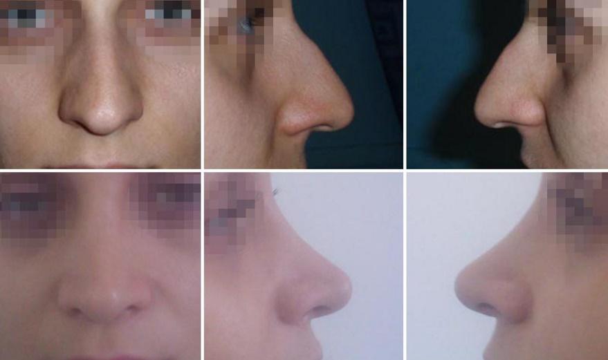 Rinoplastie – Operatia de Remodelare a Nasului – Preturi