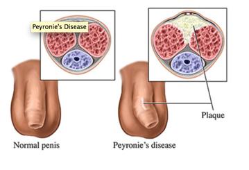 Photos Of Viagra Skin Lesions Pustules :