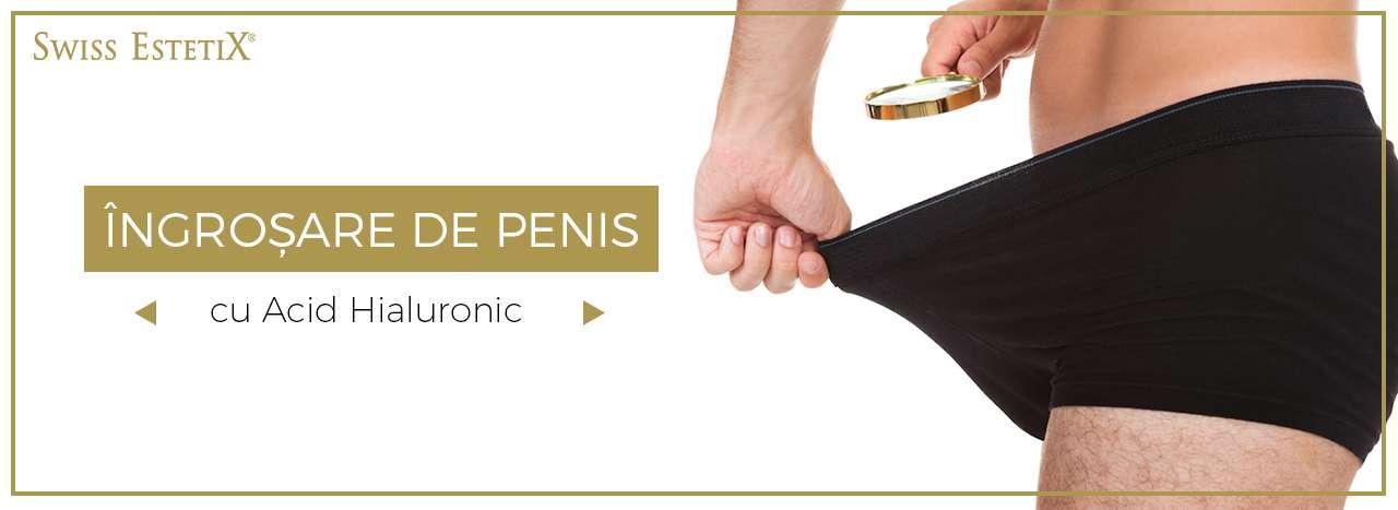 penisuri germane