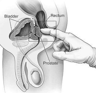 prostatită cronică și disfuncție erectilă o erecție apare la vederea prietenei tale