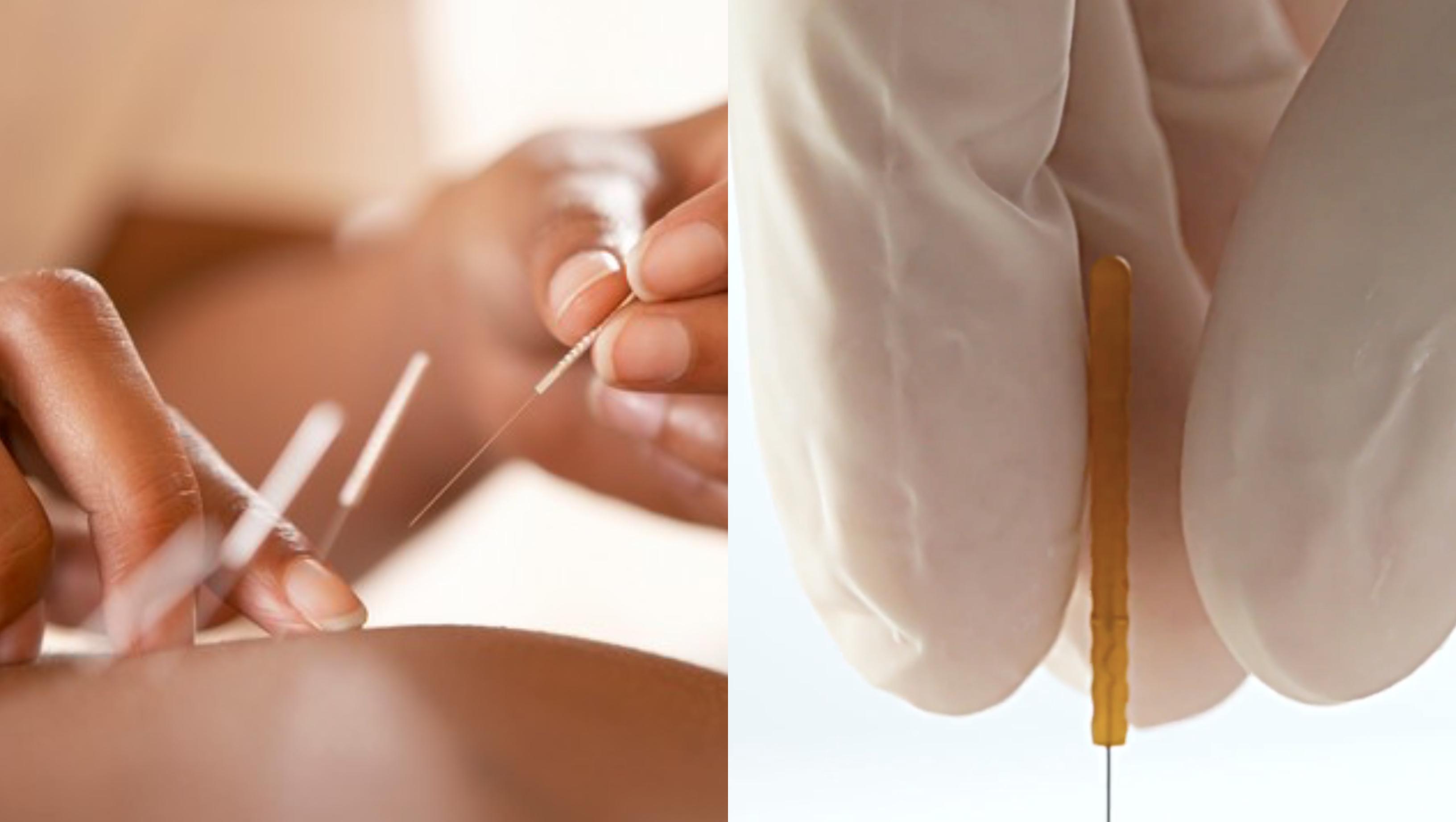 acupunctura penis chirurgie estetică pe penis