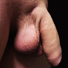 erecție fără scrot apariția penisului în timpul erecției
