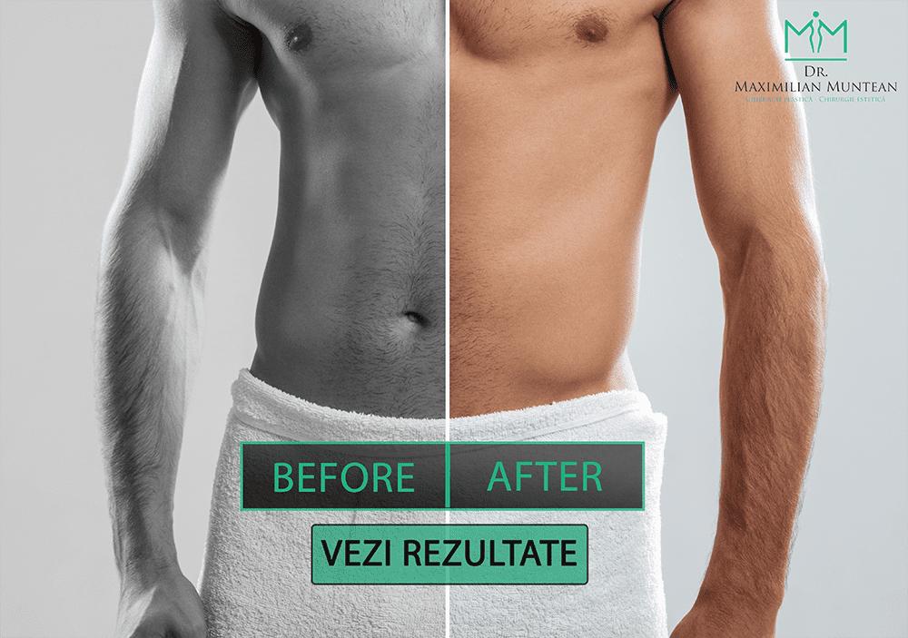 penis înainte și după operația de mărire