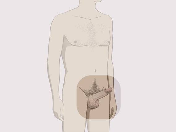 Daca un barbat si-a extirpat ambele testicule, mai poate avea viata sexuala Urgent